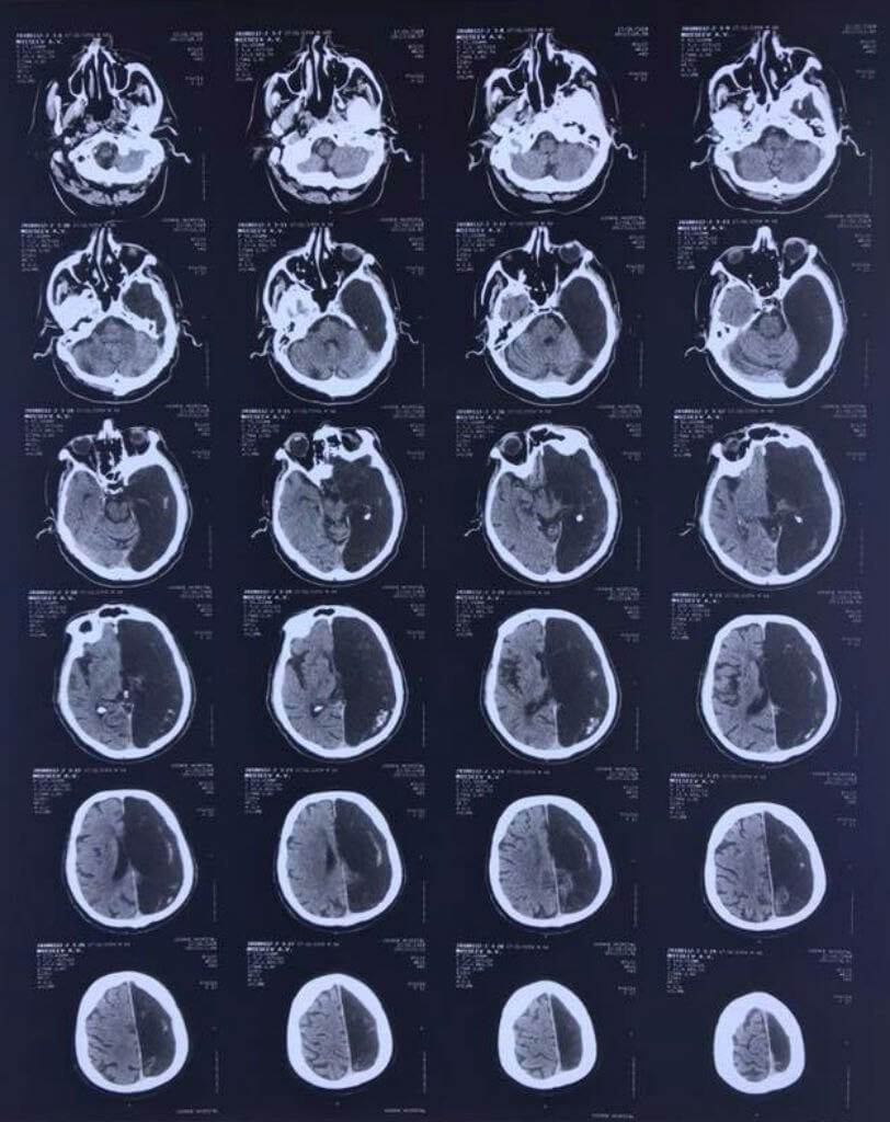 Brain scan with half of brain missing